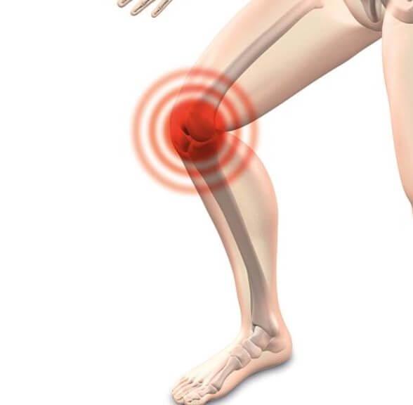 Arthrose Diät zur Schmerzlinderung
