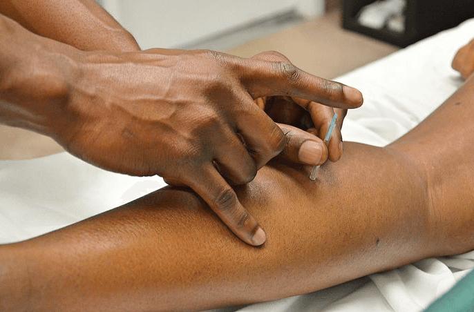 Mit der Hilfe von Akupunktur abnehmen ohne zu hungern