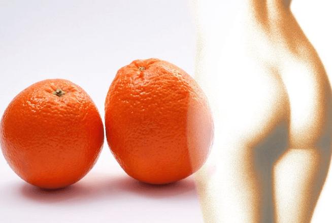 Anti-Cellulite Formel gegen Orangenhaut